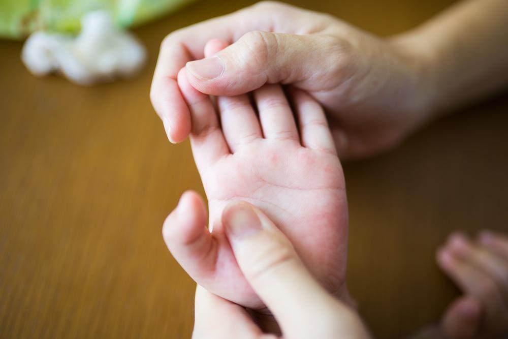Bebeklerde Sedef Hastalığı Olur Mu?